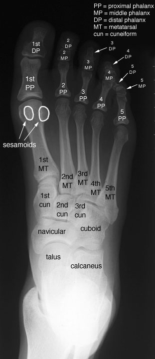 Radiographic Anatomy Of The Skeleton Foot Anteroposterior Ap