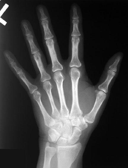 Radiographic Anatomy Of The Skeleton Hand Posteroanterior Pa