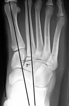 a. Normal 1st-2nd intermetatarsal angle.
