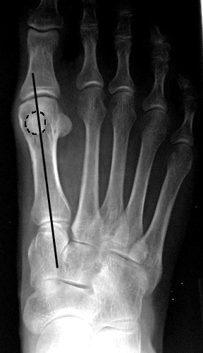 a. Medial sesamoid overlapping less than 50% of mid-axis line, corresponding to Station 1, which is within normal limits.