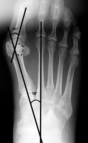a. Moderate hallux valgus, with increased 1st metatarsophalangeal angle, 1st-2nd intermetatarsal angle, and Station 2 position of the sesamoid.