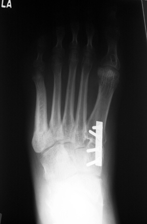 a. Arthrodesis of the first tarsometatarsal joint to reduce plantar flexion of the first ray.