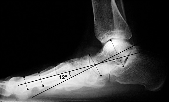 b. The long axis of the talus is angled plantarward in relation to the first metatarsal, consistent with pes planus.