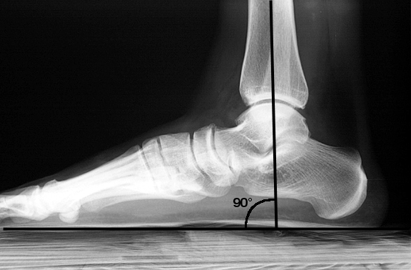 Full weight-bearing. The tibia is perpendicular to the floor.