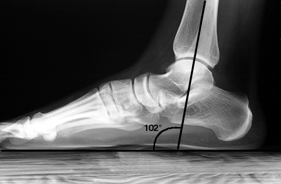 Partial weight-bearing. Note that the tibia is angled relative to the floor.