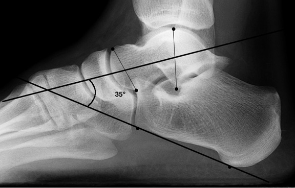 a. Normal lateral talocalcaneal angle.