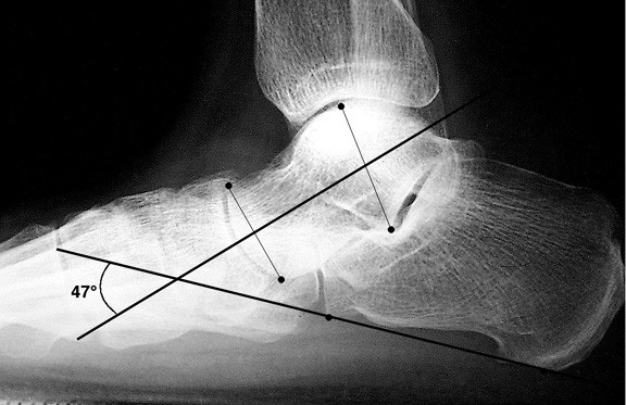 b. Increased talocalcaneal angle indicaitng hindfoot valgus in pes planus.