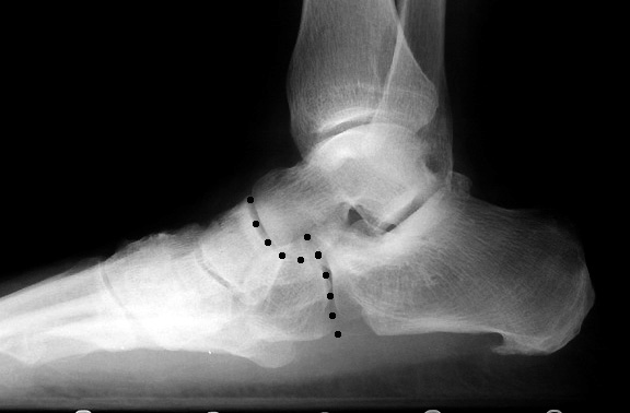 pes_planus [Foot Alignment]