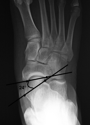 a. AP view showing lateral peritalar subluxation.