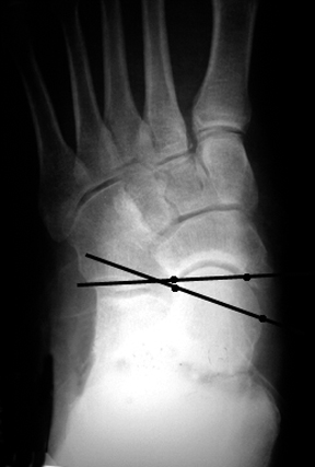 a. Preoperative view of a patient with symptomatic pes planus showing abnorma talonacicular uncoverage.