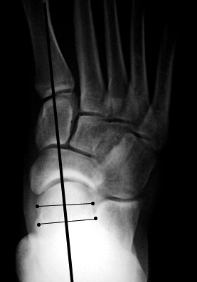 a. Normal talar-1st metatarsal angle on AP view.
