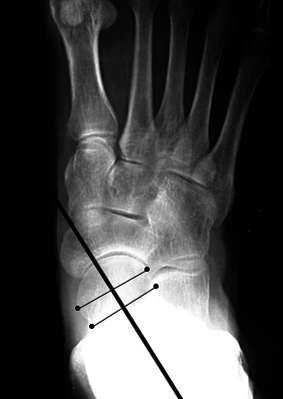 b. Abnormal talar-1st metatarsal angle, angled medial to the first metatarsal.