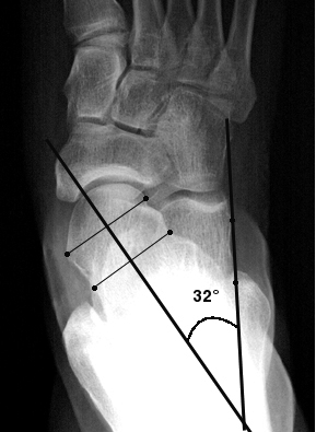 b. Abnormally increased AP talocalcaneal angle, indicating hindfoot valgus in pes planus.