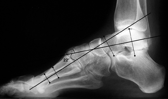b. Abnormal Meary's angle, convex upward, indicating pes cavus.