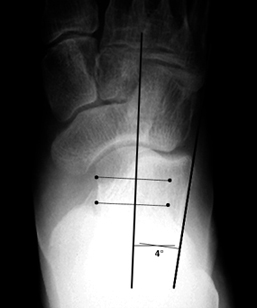 b. Abnormally decreased talocalcaneal angle, indicating hindfoot varus.