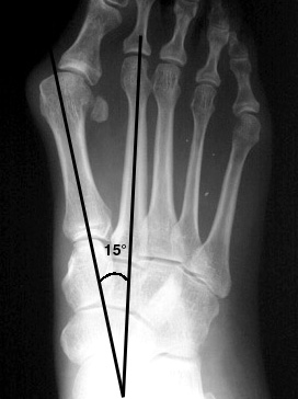 b. Abnormally large 1st-2nd intermetatarsal angle, greater than 9°, consistent with metatarsu primus varus.