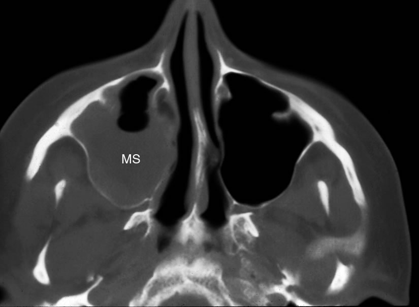 maxillary sinus: abnormal, Human Body