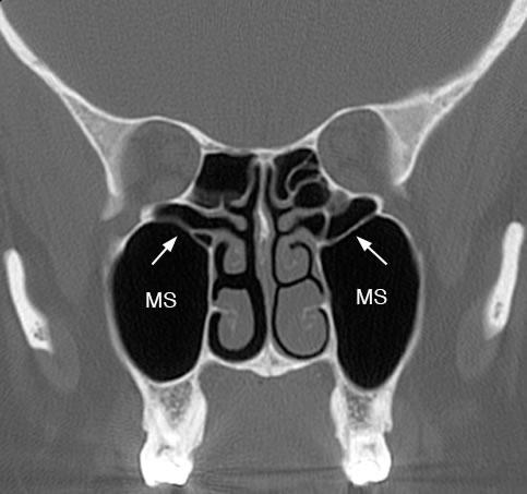 Maxillary Sinus: Normal Anatomy & Variants