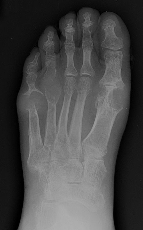 Gout - advanced: