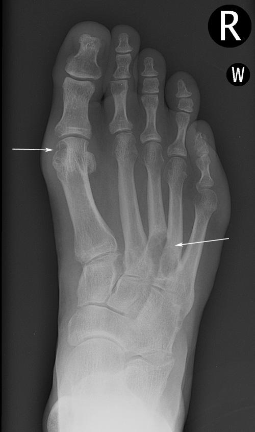 Gout - multiple erosions: