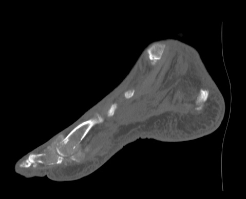 Gout - sagittal CT: