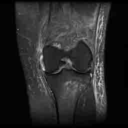 Medial Collateral Ligament III: Complete disruption of the Medial collateral ligament with an abnormal contour and increased T2 signal extends through the expected position of the ligament.