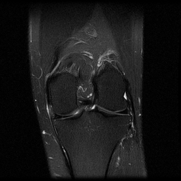 Medial collateral ligament I: Increased T2 signal surrounds the MCL without change in contour or increased signal extending into the ligament.