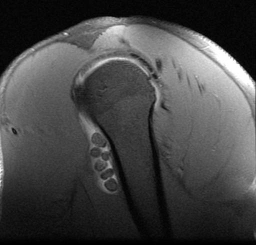 intraarticular bodies MR: