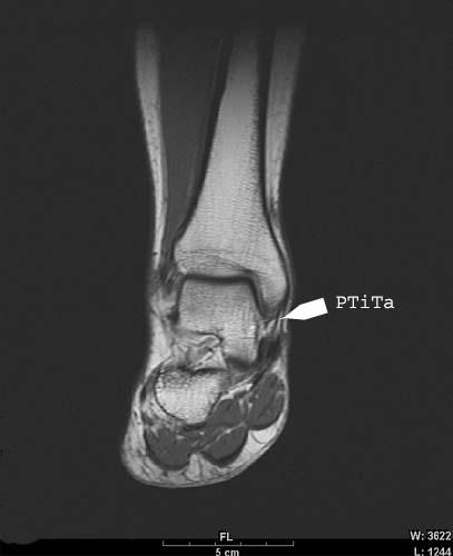 PTiTa: Posterior Tibiotalar Ligament