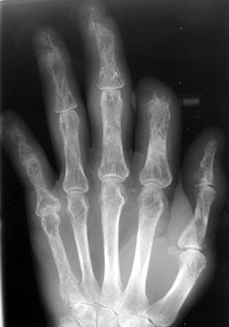 Sarcoid hand: