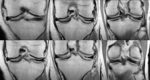discoid lateral meniscus: