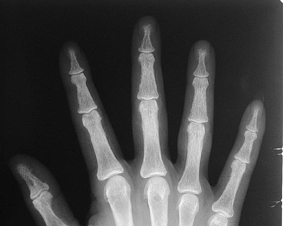 Hyperparathyroidism hand2:
